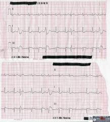 EKG Strips
